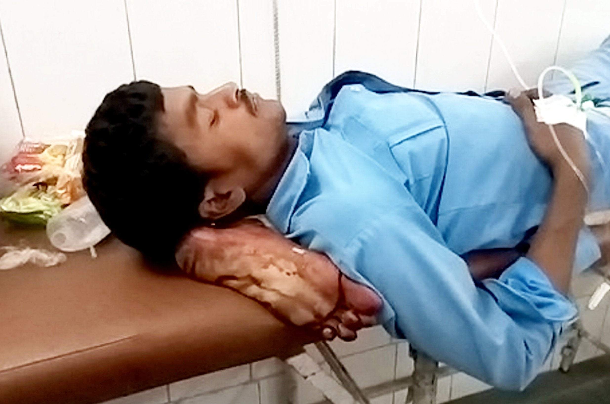 This shocking video shows a man using his own left FOOT as a PILLOW - after doctors amputated it when he was involved in a bus crash. See SWNS story SWFOOT. The 25-year-old works as a helper on a school bus which overturned while trying to avoid colliding with a tractor yesterday (Sat). Twenty-five schoolchildren were also injured in the accident in Ghanshyam, India, reports said. He was then taken to Jhansi Medical College, 34 miles from the accident site, where doctors amputated his leg and placed it under his head as a pillow, his relatives allege.