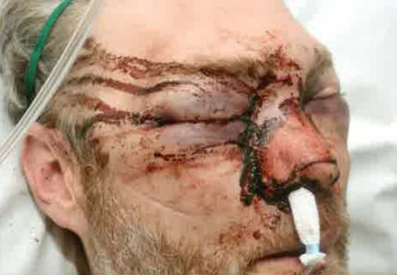 """A teacher who was badly beaten up by a former pupil says his attacker can """"smirk"""" at others - from his prison cell. Christian Dawson, 40, was hit in the face by six-footer Lukas Mikoliunas, 18, shortly after 2am on March 18 last year, outside the Jet garage in Princes Avenue, Hull. caption: Christian Dawson's injuries inflicted by Lukas Mikoliunas"""