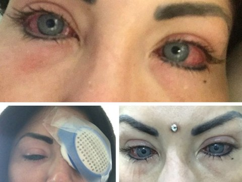 Instagram model blinded after surgery to change her eye colour
