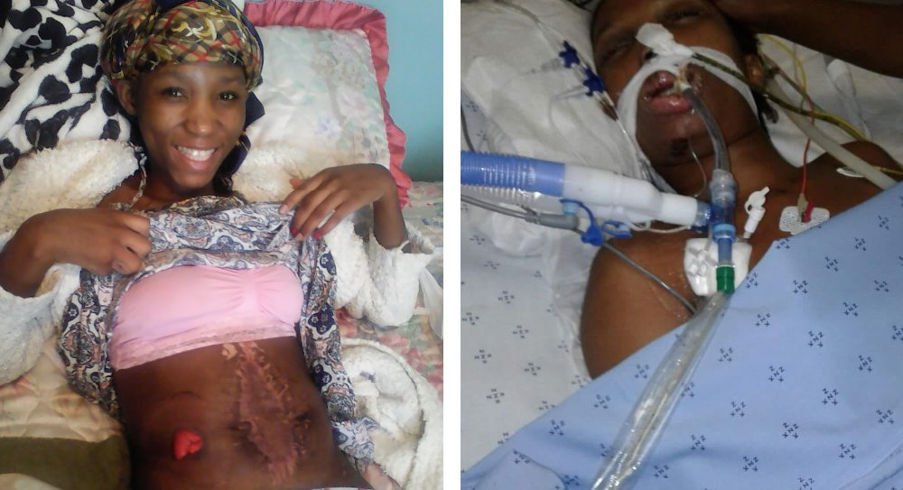 *** EXCLUSIVE - VIDEO AVAILABLE *** UNSPECIFIED, UNDATED: Neli Zuma lies in a hospital bed after surviving a tragic car accident that killed her friend and left her with external scars. A TENACIOUS model has learnt to show-off her scars after a tragic car accident left her fearing for her future. When she was just 23 years old, Neli Zuma was fighting for her life in ICU with internal bleeding after her friend?s car span out of control and hit a wall. Neli, now 25, was left with a gaping hole in her stomach and doctors had no choice but to remove skin from her thigh and sew it to the open wound to prevent her bleeding out. Unfortunately, there was nothing they could do for her close friend who passed away two days later. Neli, who had just started out with her modelling career, was left with scarring on her stomach and thigh and she had to use a colostomy bag for 10 months. Her body-confidence had hit an all-time low. But after months of trying to improve the way she saw herself, Neli from Durban, South Africa, decided it was time to show the world that she is no longer ashamed of her scars. PHOTOGRAPH BY Barcroft Images