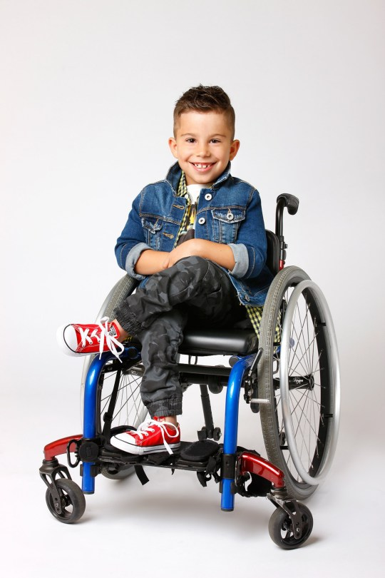 Boy Born Bent In Half Now Models For Tommy Hilfiger Using
