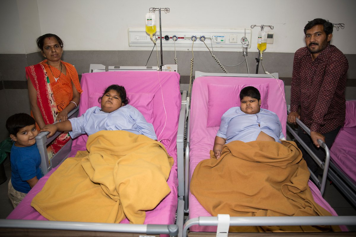 GUJARAT, INDIA - MARCH 7, 2018: Yogita, eight, and Amisha, six, recover after surgery with their mother Pragna Ben, 32, and father Rameshbhai, 36, at Asian Bariatrics Clinic, in Ahmedabad, Gujarat, western India. Sisters Yogita weighed a staggering 59kgs and sister Amisha weighed a massive 82kgs before surgery. The two sisters have now had their stomachs halved in a bariatric operation to help them get healthy. Pictures by: Tanzeel Ur Rehman / Cover Asia Productions