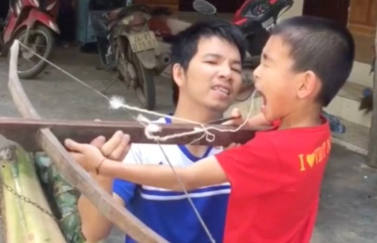 Dad ties string to son's wonky tooth then fires a crossbow