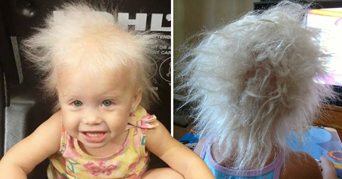 Little girl has rare condition which causes her to have hair like Albert Einstein