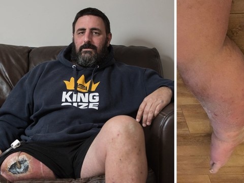 Dad had to have leg amputated after he was bitten by false widow spider