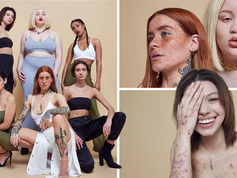 Missguided is celebrating female 'flaws' in their latest campaign