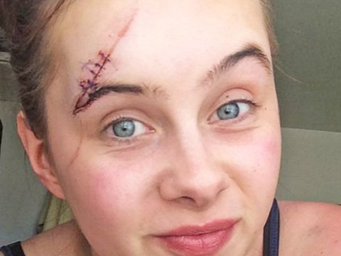 Woman reveals horrific scars from stiletto as attacker gets away with a caution