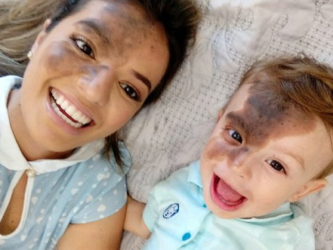 Mum has her face painted to match her son's birthmark so she can see what life is like for him