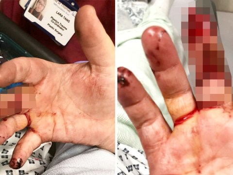 Delivery driver's finger ripped off in horrific dog attack