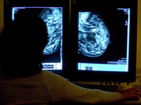 Breast cancer hotline staff 'given just one hour's training before handling women's cases'