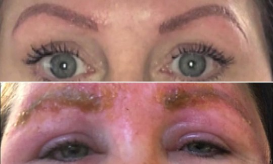 Woman left with blistered, swollen brows after discount