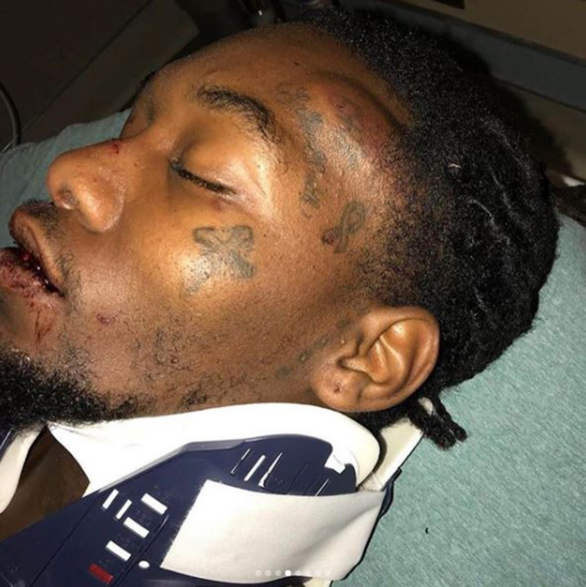 METRO GRAB - taken from the Instagram offsetyrn no permission Offset shares bloody pictures of aftermath of car crash https://www.instagram.com/offsetyrn/?hl=en Instagram/offsetyrn