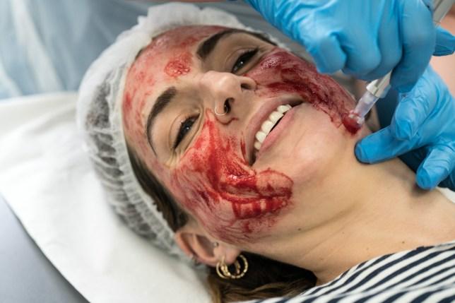 Dermae Pen treatment in Harley Street for Lisa