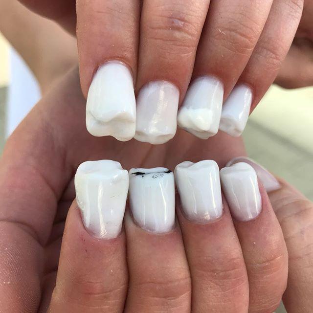 teeth nail art