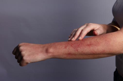 How to treat heat rash