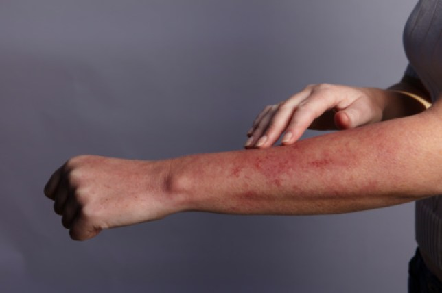 How to treat heat rash and what are the symptoms? | Metro News