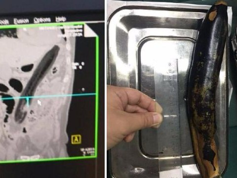 Man put an aubergine inside his rectum to try to cure constipation