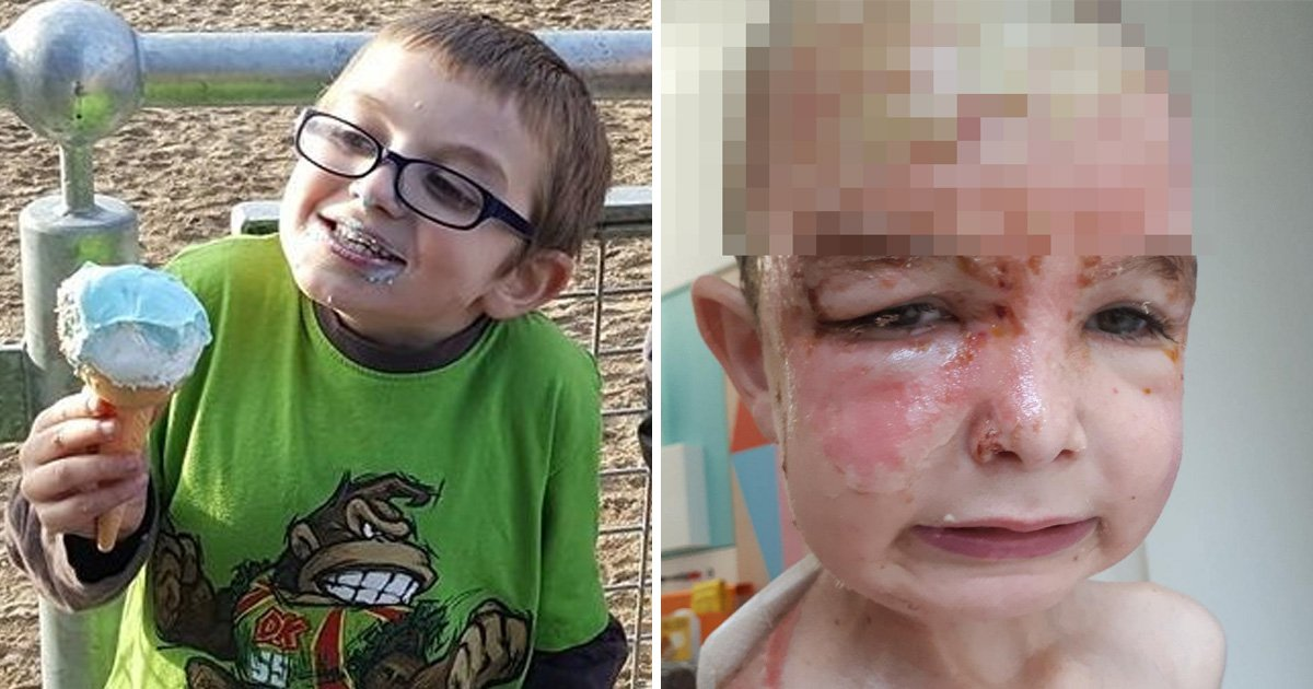 Three arrested after boy, 7, suffers horrific burns from scalding water