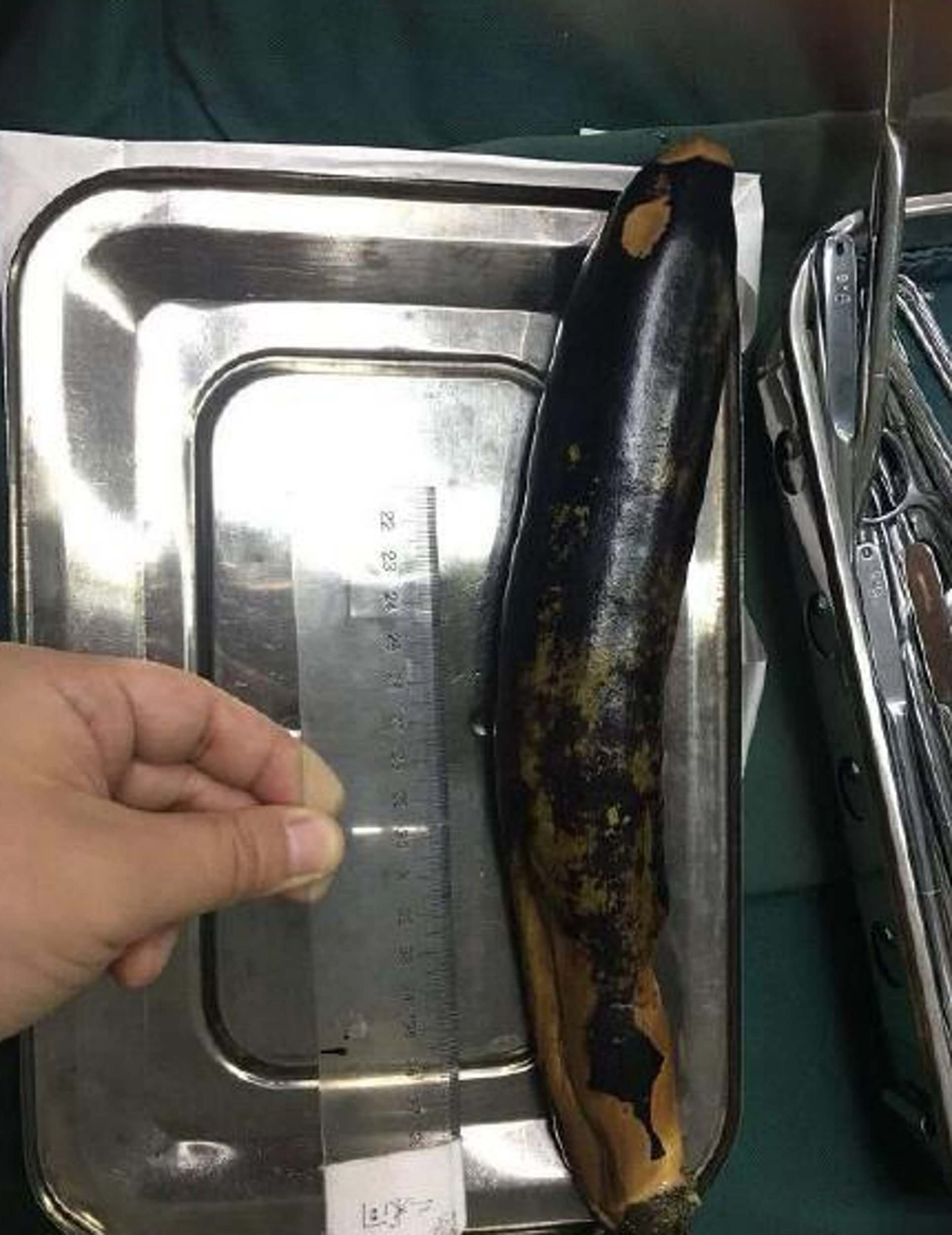 "Pic shows: The aubergine removed from the man's body Doctors in China have removed a foot-long aubergine from a man???s intestines after he shoved the fruit up his rectum in a desperate bid to cure for his constipation. According to reports, the unnamed 50-year-old man finally sought medical attention after leaving the 12-inch aubergine in his body for two days. The patient???s exact location in China has not been revealed, with reports saying he was treated on 30th May after his own DIY cure backfired. The man told doctors that he had been suffering from constipation and nausea for two days when he decided to insert the aubergine into his anus and up his rectum in a bid to expand his colon. He had hoped this folk remedy would help ease his pain, but the smooth, long fruit was inserted far too deep and ended up being sucked into his body. Scans showed it having travelled up his large intestine and lodged itself at an angle in his abdomen. Incredibly, he suffered through two more days of abdominal pain, nausea and vomiting before finally seeking help. Medics treating the man retrieved the aubergine whole, saying that the fruit was so far up his body that it caused lung inflammation and a ruptured bowel. It is unclear, however, whether his constipation symptoms were relieved. Social media users on Weibo have left more than 12,000 comments and 11,000 likes on reports of the unbelievable case. ???Luce Lushisuo Wang Chengyan??? wrote: ""Now stick some potatoes and green peppers up there and you???ll get ???di san xian???"" - referring to the Chinese dish which translates as ???treasures of the earth???."
