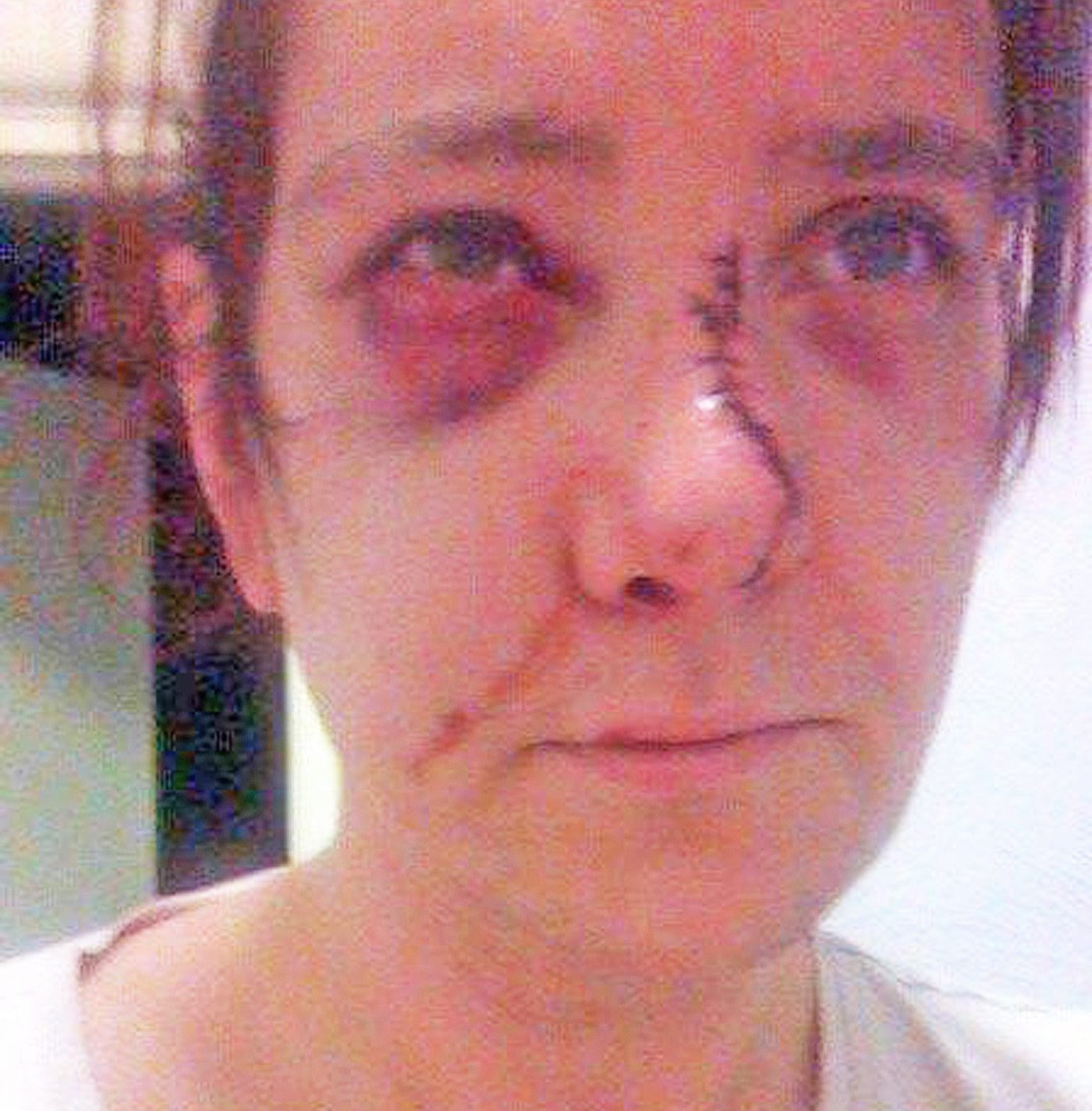 Pic by Hotspot Media -WOMAN REVEALS HOW EX BRUTALLY BEAT HER BUT ESCAPED PRISON - IN PIC - Justine Wood, 40, of Colne, Lancashire, with stitches in her broken nose after an attack by Damian in 2014.- A woman whose former partner repeatedly and brutally beat her up 'like a wild animal' has spoken of her shock at how he escaped prison. Justine Wood, 40, of Colne, Lancashire, was left scarred for life after her ex broke her nose in a series of sickening attacks that left her fearing she???d be killed. The mum-of-one also suffered a fractured jaw, an inch-long gash on her head, and has lost feelings in two of her fingers after Bridge bit her in four separate beatings. Shockingly, despite being found guilty of assault by beating and assault occasioning actual bodily harm, in June 2017 Bridge was handed an 18-month suspended sentence and an 18-month restraining order. ...SEE HOTSPOT MEDIA COPY 0121 551 1004