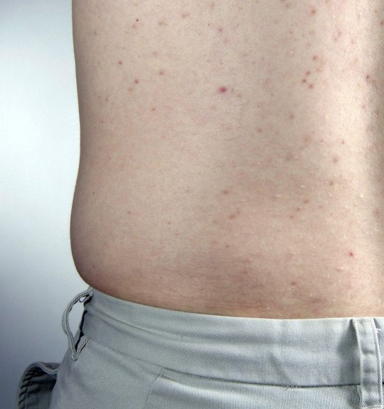 acne on a males back