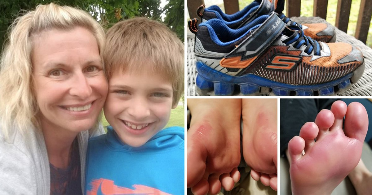 Mom claims light up shoes caused chemical burns on her son's
