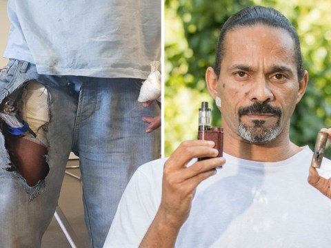 E-cigarette explodes in man's pocket only 'two inches away from his penis'