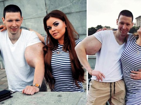 Girlfriend of man with fake Popeye arms wants him to get bum injections