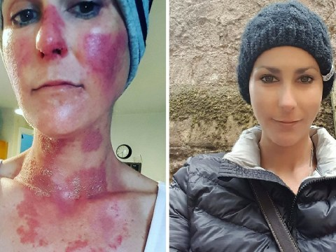 NHS nurse who had to crowdfund for her own cancer treatment is now in remission