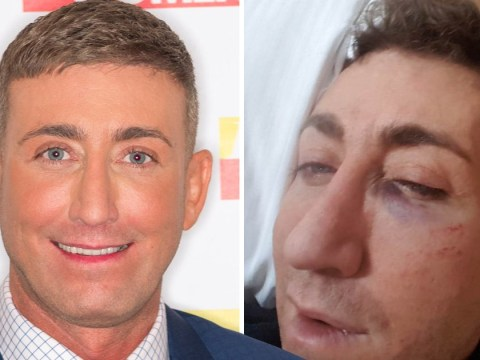 Christopher Maloney 'badly shaken up' and bruised after attempted mugging