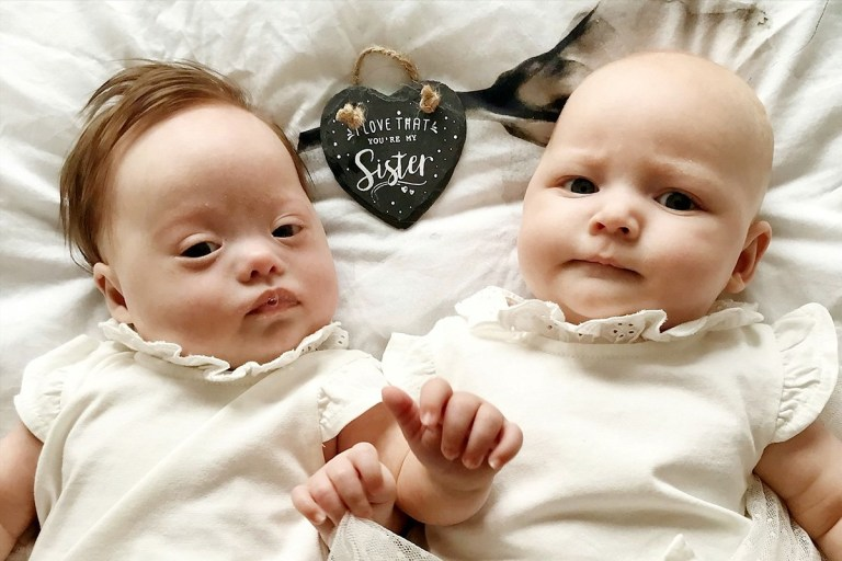 Mom Has Twins, One With Down Syndrome, in Rare Birth - YouTube |Babies With Down Syndrome Stars