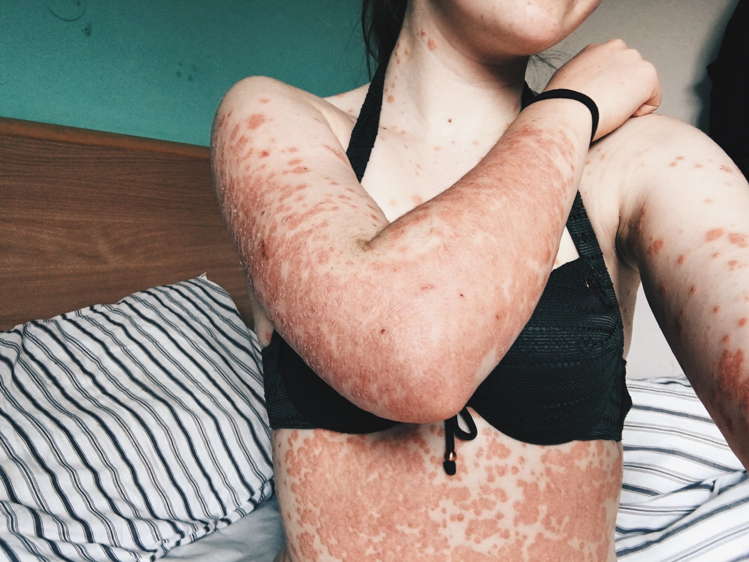 ELLASTONE, STAFFORDSHIRE, UNITED KINGDOM: Charlotte's psoriasis on her arms and body. THIS BRITISH student has revealed how she embraced her painful psoriasis that made her feel like she was ???trapped in a shell??? and even caused her body to ???crack open and bleed??? when she stretched. Television student, Charlotte Agnew (19) from Ellastone, Staffordshire, first noticed red spots appearing on her skin not long after she moved to university. Spreading across her body, Charlotte???s confidence started to diminish as people would stare in shock and confusion at her angry skin which would crack and bleed. However, Charlotte has now embraced her psoriasis, and is confident to walk down the street with her arms and legs on show and enjoys going to the beach and doesn???t flinch at wearing a swimsuit. When first diagnosed with psoriasis, Charlotte tried lots of different steroid creams and treatments which were tedious to apply and didn???t help but she has found that lifestyle changes have brought about the biggest improvement to her skin. Now at university in Cornwall, she enjoys swimming in the sea as she has found that the saltwater soothes her skin and being out in the sun has helped her spots fade. Charlotte Agnew / MDWfeatures