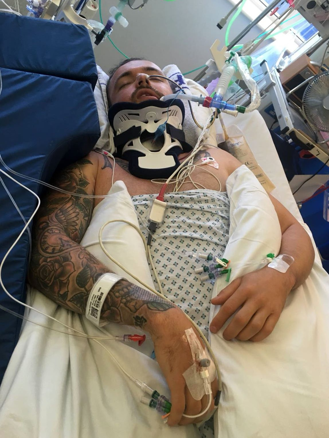 BNPS.co.uk (01202 558833)?Pic: JoshPayneGover/BNPS Josh now. A man who broke his neck tombstoning with friends into shallow water has spoken out about how his life has changed after doctors told him he may never walk again. Josh Payne-Gover was enjoying a day out with friends at Weymouth beach in Dorset when he shocked onlookers as he leapt from a 6ft wall into the sea and landed on his head. Josh, 25, was unconscious when he surfaced and had to be airlifted to hospital with spinal injuries on June 30. Now after three weeks in intensive care, including spending his birthday in hospital, keen sportsman Josh is determined to stay positive and hopes to one day compete in the Paralympics or Invictus Games.