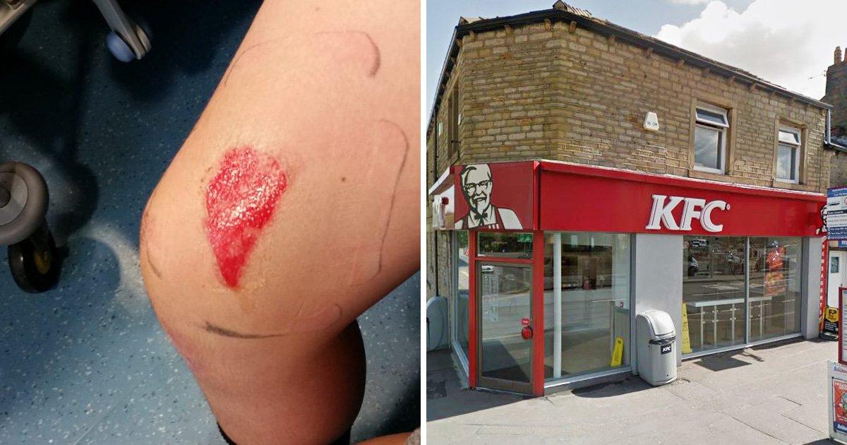 Mum demands KFC to serve its gravy cooler after son suffered serious burns