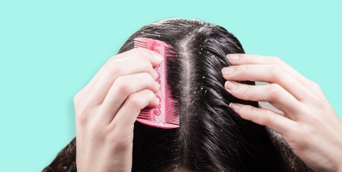 Why you shouldn't get involved in the dandruff scraping