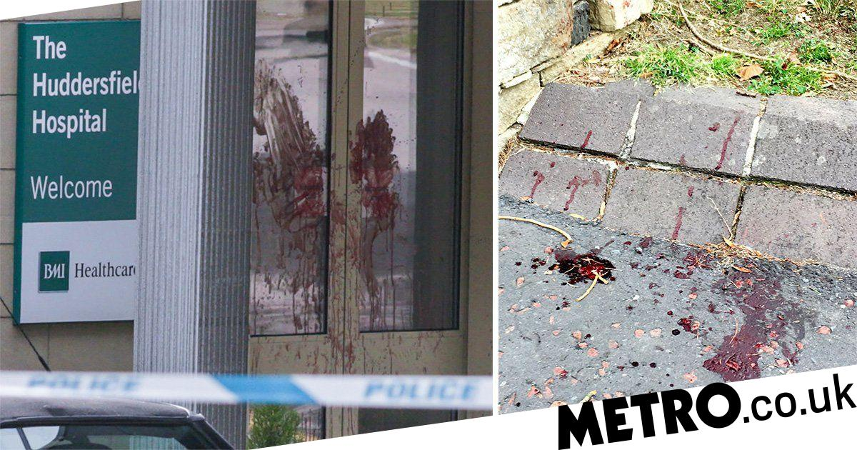 Blood smeared on hospital door after 'serious attack' on man
