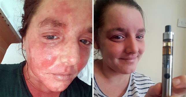 Woman says vaping CBD oil has cured her severe eczema