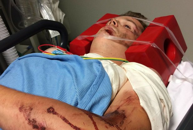 Horrific GoPro footage shows the moment a mountain biker crashed and broke his jaw after he bombed down a near-vertical drop. Frankie Gray, 24, was seriously injured after he landed on hard earth while riding at Danbury Common in Danbury, Essex, last Thursday [August 2]. Caption: Frankie Gray, pictured in hospital after breaking his jaw in a mountain biking accident at Danbury Common in Danbury, Essex, on August 2, 2018