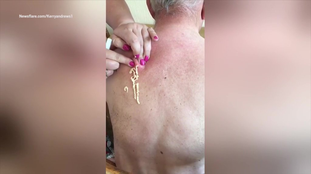 Stomach-churning clip reveals the moment a stream of cottage cheese-like pus pours out of an abscess that had been growing on an elderly man's back for 25 YEARS Newsflare