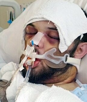 *** EXCLUSIVE - VIDEO AVAILABLE *** MIDDLESBORO, KY - DATE UNKNOWN: Cody Coots lies in hospital after after being bitten by a rattlesnake at the Full Gospel Tabernacle in Jesus Name on June 14, 2015 in Middlesboro, Kentucky. A NEW documentary has captured the startling moment a controversial American pastor is bitten by a deadly snake during a service. Cody Coots is the pastor at the Full Gospel Tabernacle in Jesus? Name church in Middlesboro, Kentucky - one of America?s only remaining snake-handling churches. The dangerous ritual had already cost the Pentecostal church its previous pastor, Cody?s father Jamie Coots, 42, after he was bitten by a rattlesnake and killed in 2014. And the shocking footage shows Cody Coots - his shirt splattered in blood - collapsing and being helped from his altar as the snake?s potentially lethal poison begins to take hold. The church?s story is told in My Life Inside: The Snake Church, the first film in a new series from Barcroft TV which gains unprecedented access to people who?ve chosen to live outside the norms of modern mainstream society. *** CONDITIONS OF USAGE*** The following must be used in print and/or online: My Life Inside: The Snake Church premieres on Barcroft TV, on YouTube, from Friday August 17. PHOTOGRAPH BY Barcroft Images