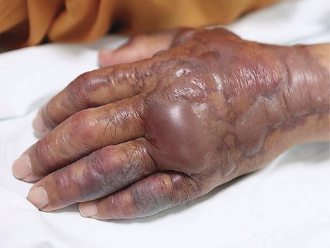 Man, 71, had hand amputated when skin started rotting 12 hours after eating sushi