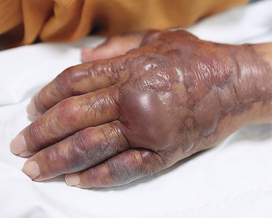 A 71-year-old man presented to the emergency department with a 2-day history of fever and excruciating pain in his left hand that had developed 12 hours after eating raw seafood. He had a history of type 2 diabetes mellitus and hypertension and was undergoing hemodialysis for end-stage renal disease. At the time of presentation, hemorrhagic bullae measuring 3.5 by 4.5 cm had developed on the palm of his left hand (Panel A), and erythematous swelling with confluent tense bullae and ecchymoses had developed on the dorsum of the hand and forearm (Panel B). Surgical intervention was performed urgently, and Vibrio vulnificus was isolated from the bullae. Postoperatively, the patient received intravenous ceftazidime and ciprofloxacin. V. vulnificus can cause skin infections after wound exposure to contaminated seawater, as well as primary septicemia through the consumption of contaminated raw or undercooked seafood. Patients with immunocompromising conditions, including chronic liver disease and cancer, are at increased risk for infection and complications. Despite treatment, the skin lesions progressed to deep necrotic ulcers, and amputation of the left forearm was performed 25 days after presentation. The patient did well after the surgery and was discharged home.