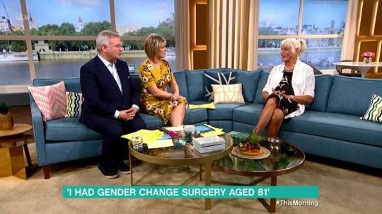 Sex Change chirurgie video