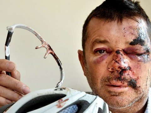 Man had to have face stitched back together after cycling into pothole