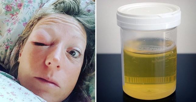 Urine cured swollen eye