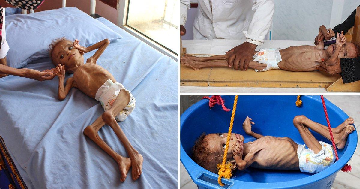 Skeletal child is just one of five million at risk of death in war-torn Yemen