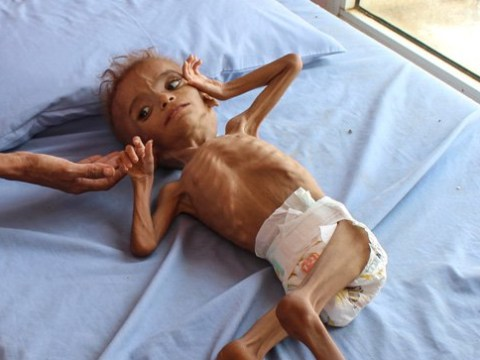 Skeletal child is just one of five million at risk of death in war-torn Yemen
