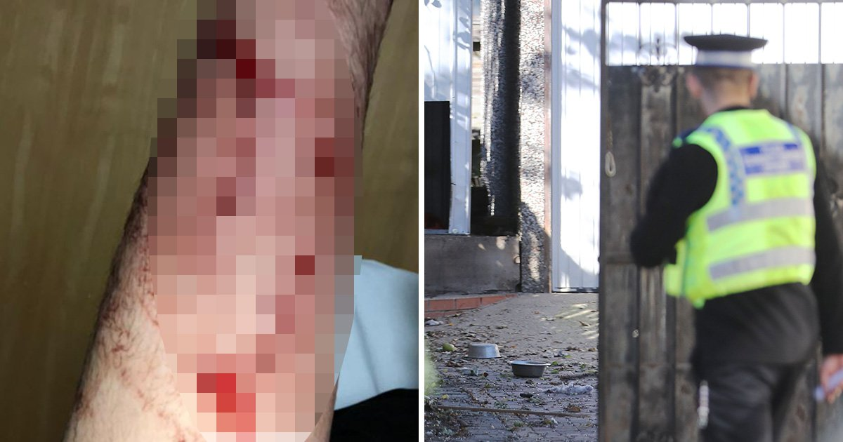 Pictures reveal injuries of police officer mauled in horror dog attack