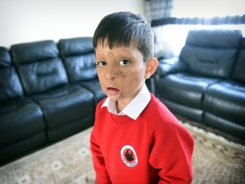 Boy, 4, scarred by gas blast that killed his parents becomes football mascot