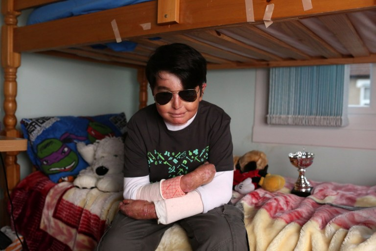 LONDON, UNITED KINGDOM, SEPTEMBER 6TH 2018. LABELS BLOG: FRAGILE 12-year-old Muhammad Fazeel Irfan pictured at his home in Croydon, London, United Kingdom, 6th September 2018. Fazeel has Epidermolysis Bullosa, also known as EB which causes the skin to become very fragile, and any trauma or friction to the skin can cause painful blisters. Photo credit: Susannah Ireland